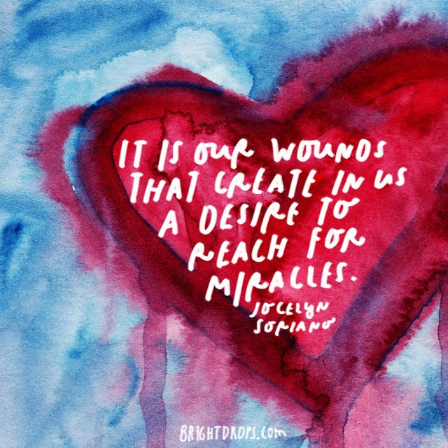 """It is our wounds that create in us a desire to reach for miracles."" - Jocelyn Soriano"